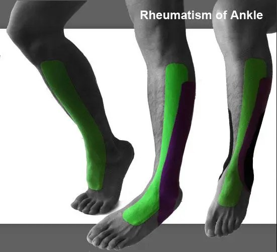 blog picture of male shins and feet with kinesiotape applied to knee down to foot and ankle