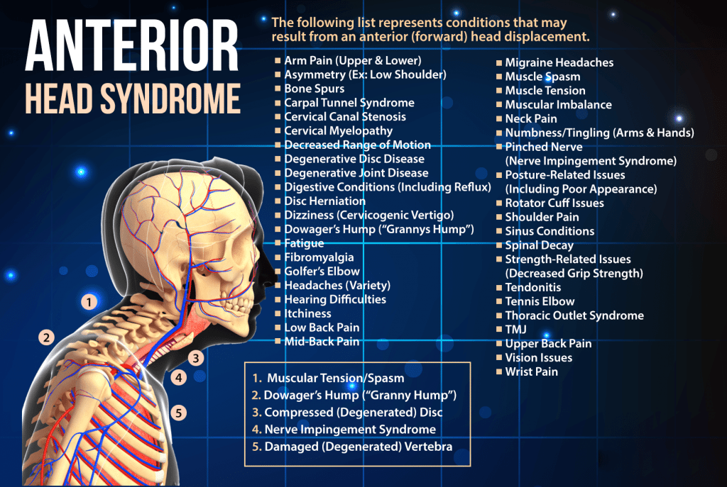 blog infographic of human skeleton with the words anterior head syndrome and all the conditions that can result from forward head displacement