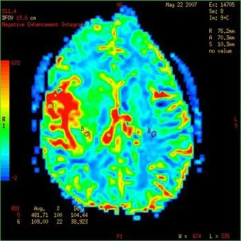 blog picture of MRI of a brain tumor