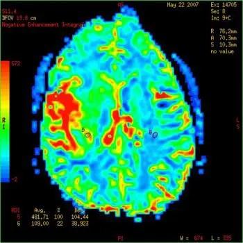 Blog foto de MRI de un tumor cerebral