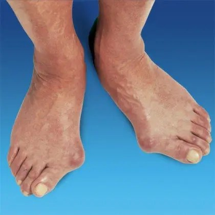 blog picture of feet with bunions