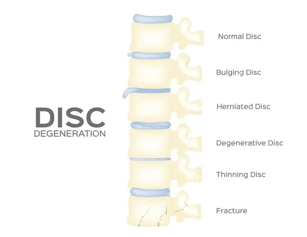 herniated disc el paso tx.