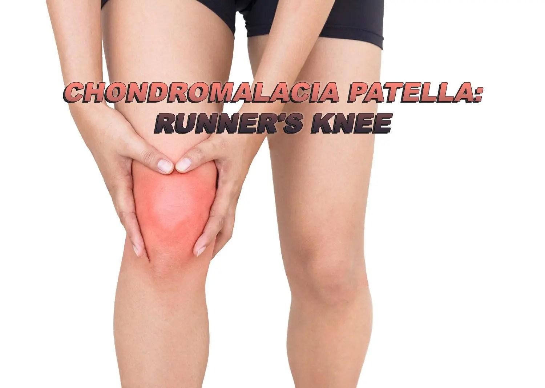 chondromalacia a térd hogyan kell kezelni fájdalom a mellkas-ízületi ízületben