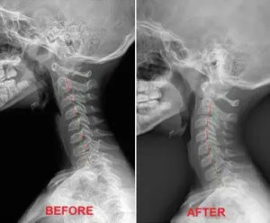 Whiplash Before and After - El Paso Chiropractor