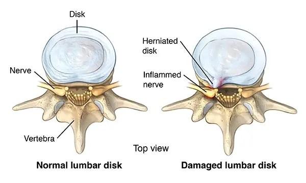 Top view of a healthy lumbar vertebra and unhealthy lumbar vertebra with a herniated disk and inflammed nerve - El Paso Chiropractor