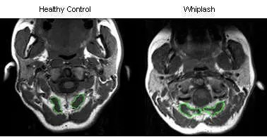 MRI Whiplash - El Paso Chiropractor