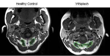 MRI Whiplash - El Paso Quiropráctico