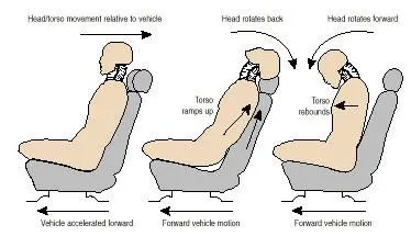 Mechanism of Whiplash Injury - El Paso Chiropractor
