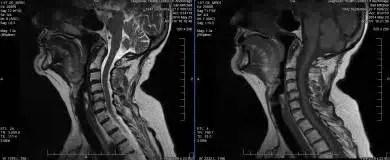 Del cuello en la RM - El Paso Chiropractor