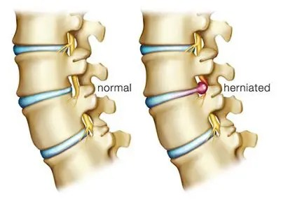 Normal and Herniated Discs - El Paso Chiropractor
