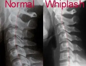 Normal and Whiplash X Rays - El Paso Chiropractor