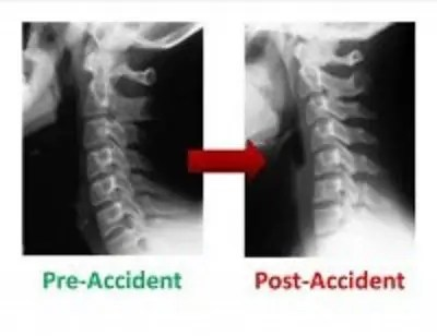 Pre-Accident and Post-Accident X-rays - El Paso Chiropractor