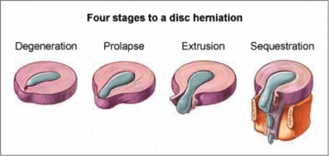 Stages of Disc Herniation - El Paso Chiropractor