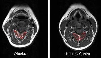 Whiplash MRI Findings - El Paso Chiropractor