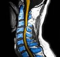 Whiplash_MRI_in_color - El Paso Chiropractor