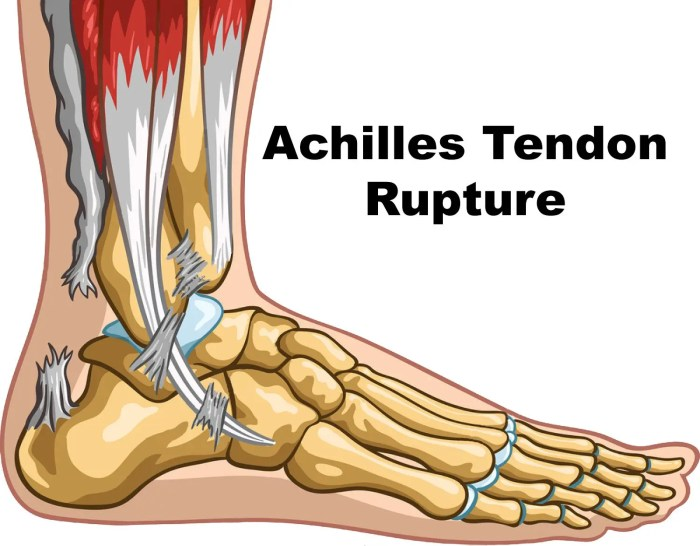 11860 Vista Del Sol, Ste. 128 Achilles Tendon Rupture, Likely Caused by Calf Injury