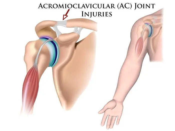 shoulder anatomy acromioclavicular joint