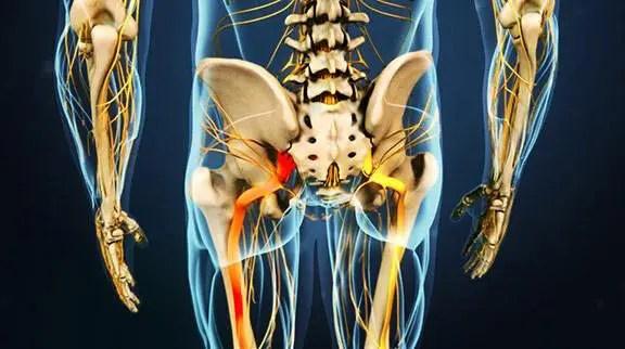 irradianta doloro en scienca nervo
