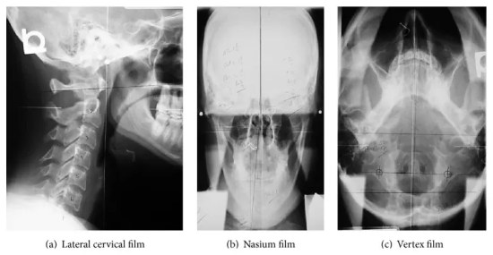 Figure 4 NUCCA Radiograph Series