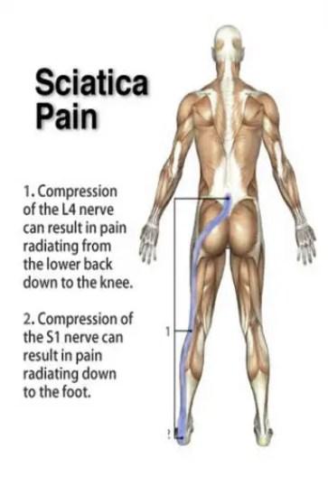 sciatica pain treatment