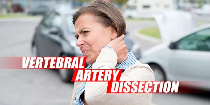 vertebral artery dissection