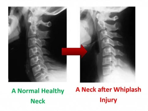 Image displaying X-rays before and after whiplash.