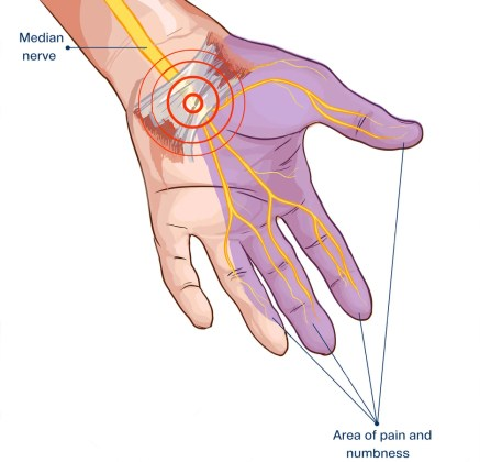 cts carpal tunnel syndrome el paso tx.