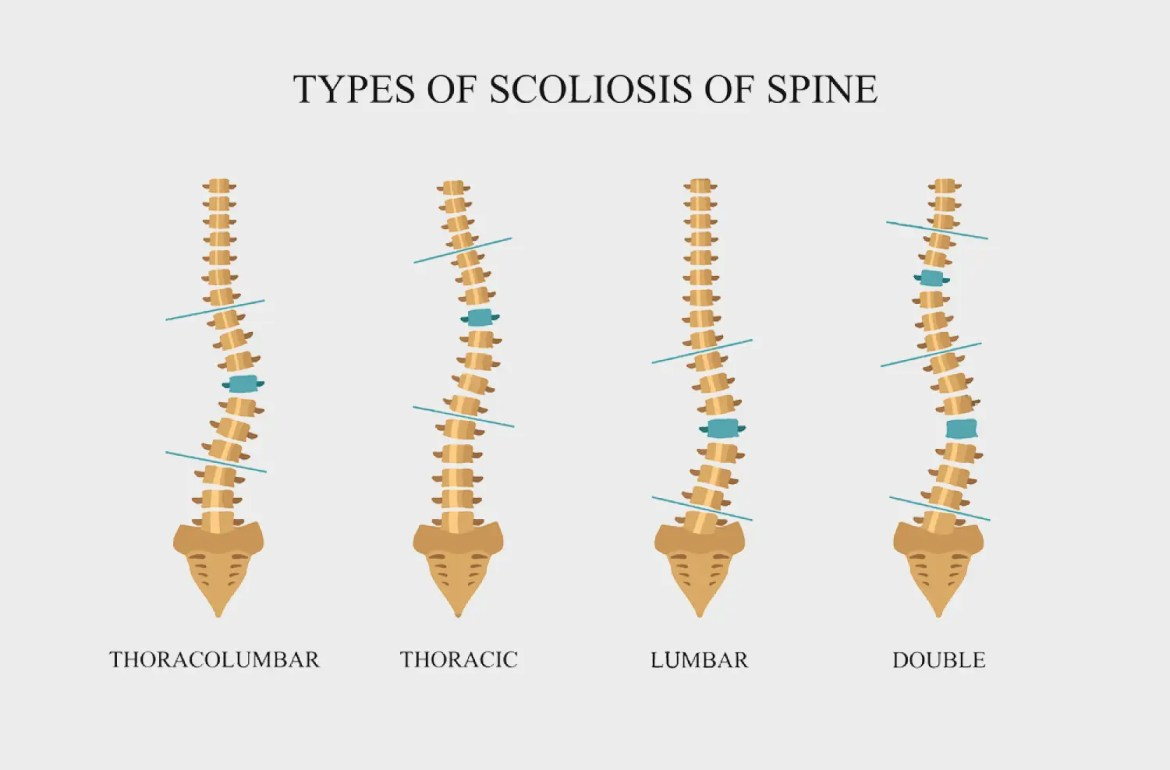 scoliosis treatment el paso tx.