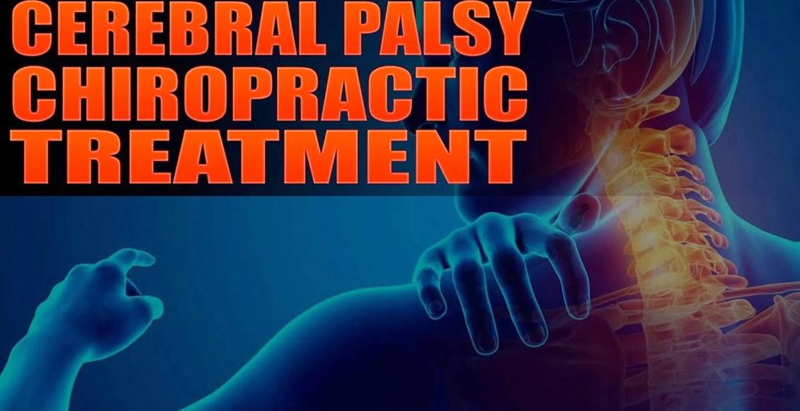 paralisi cerebrale el paso tx.