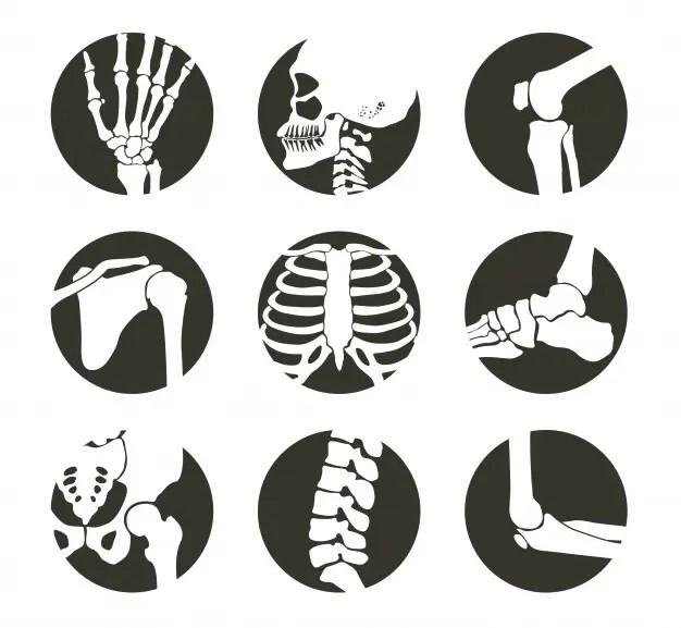 osteoporosis el paso tx.