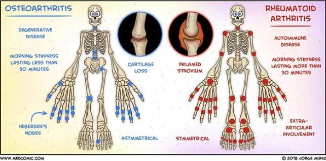 dolor neuropático facetogénico, osteoartritis y dolores de cabeza el paso tx.