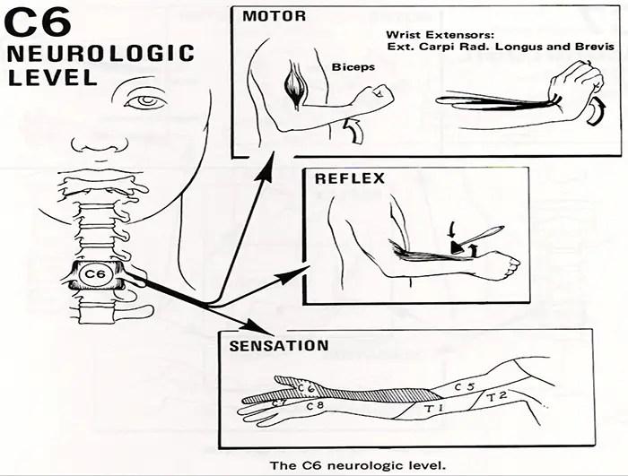 radikulopatioj kiropráktica prizorgas la paŝon tx.