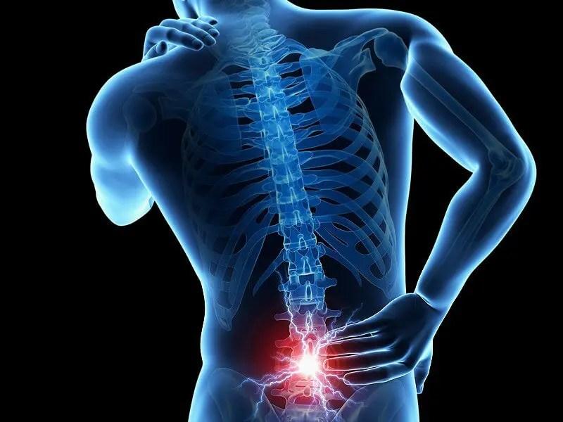 Lombalgia e lombosciatalgia: quando il mal di schiena diventa un problema