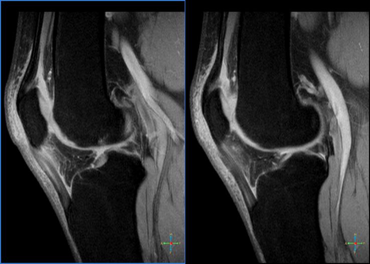 Diagnóstico por imagen que muestra tendinitis rotuliana o rodilla de saltador.