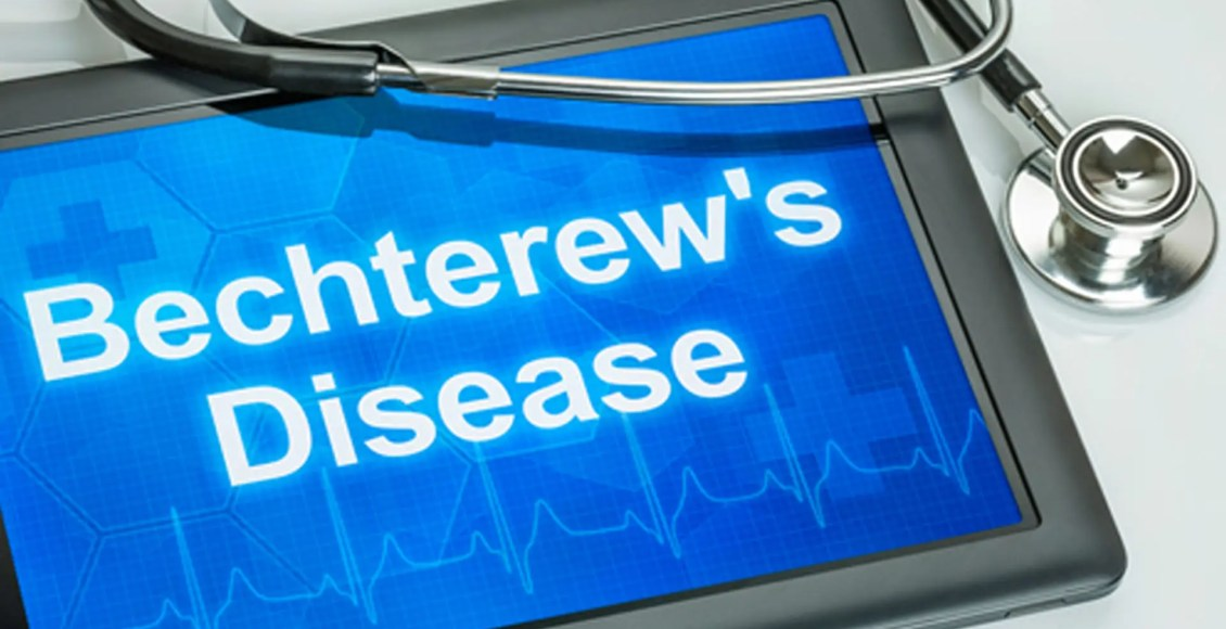 Selkärankareuma, kiropraktinen hoito el paso tx.