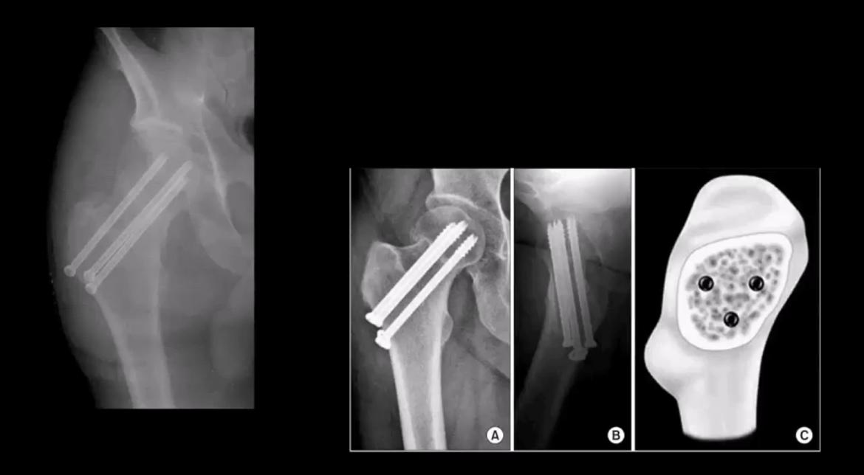 Trauma de la pelvis el paso tx.