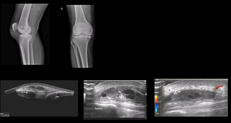 knee pain acute trauma el paso tx.