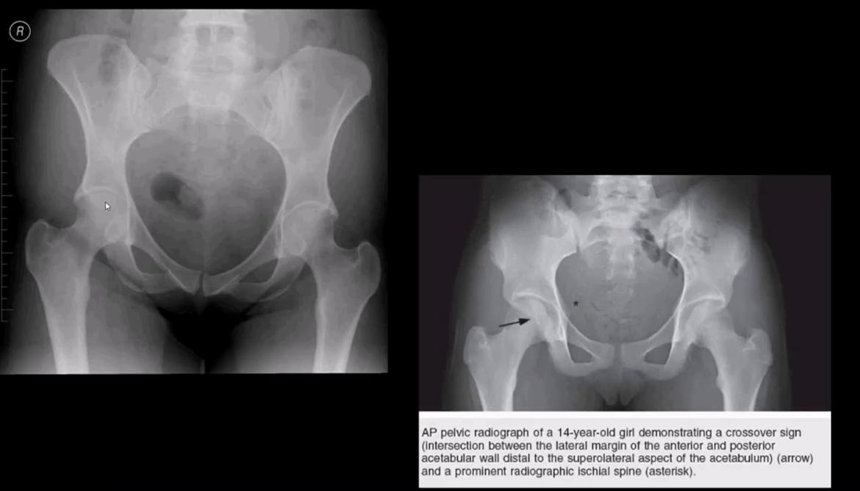 diagnosis artritis pinggul dan neoplasma el paso tx.