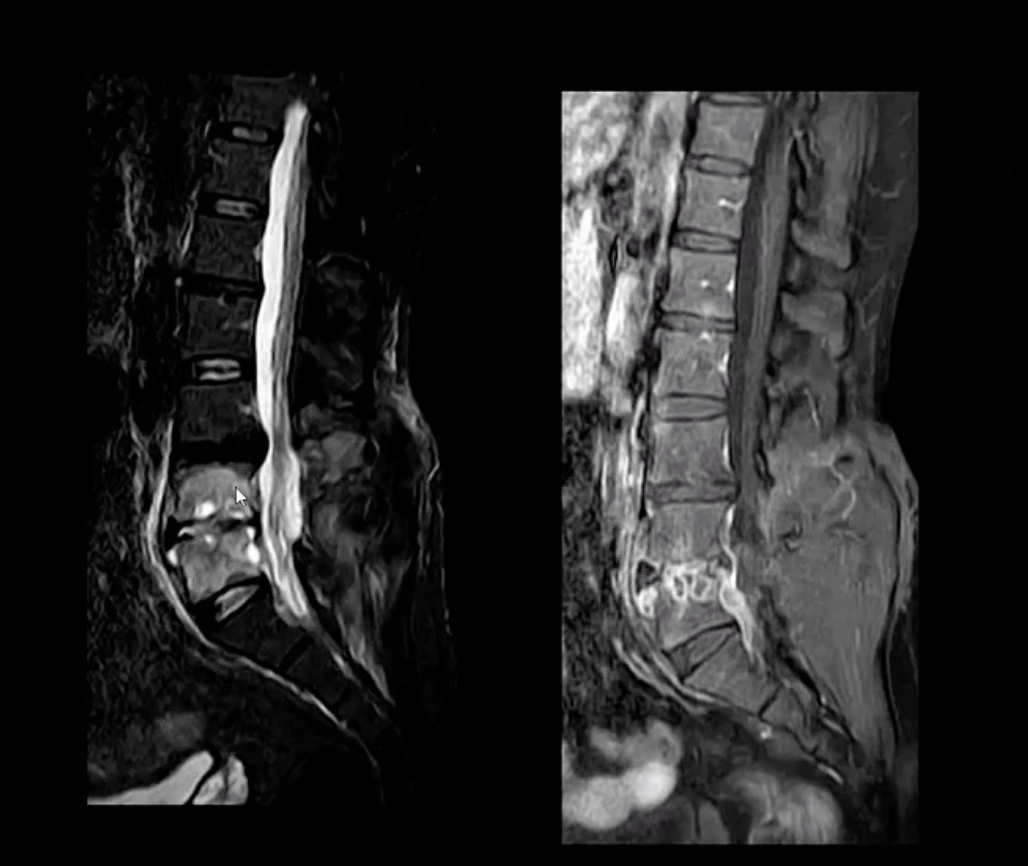 spinal infection diagnostic imaging el paso, tx.