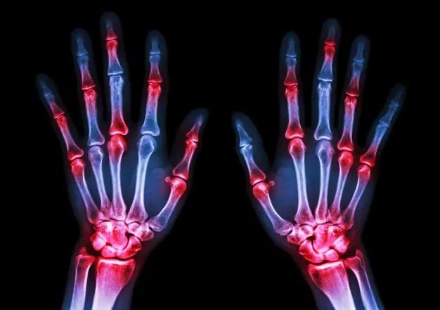 Imagem de raio-x de mãos demonstrando artrite reumatóide.