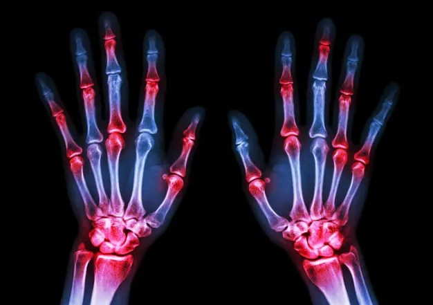 X-ray image of hands demonstrating rheumatoid arthritis.