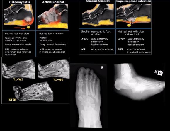 artrite alla caviglia e trauma el paso tx.
