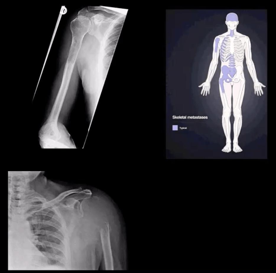 shoulder imaging el paso tx.