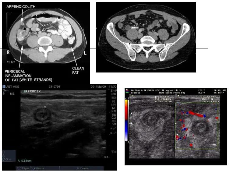 Imagen diagnóstica de abdomen el paso tx.