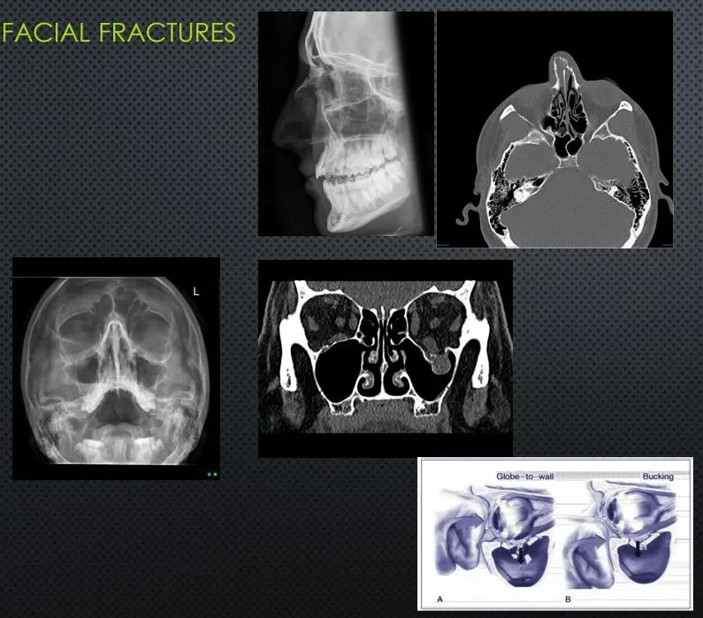 head trauma imaging el paso tx.