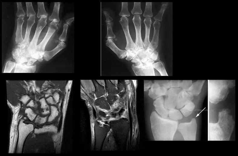 wrist hand diagnostic imaging el paso tx.