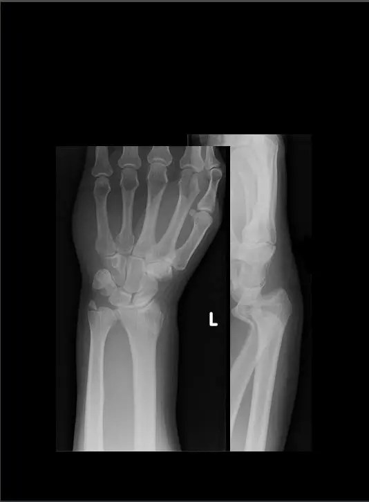 diagnostica del polso a mano imaging el paso tx.