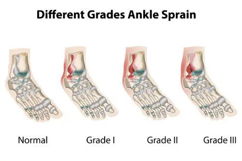 11860 Vista Del Sol, Ste. 128 The 3 Degrees of An Ankle Sprain & Chiropractic Care