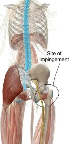 ischiofemoral impingement diagram 2 | എൽ പാസോ, ടിഎക്സ് ചിറോപ്രാക്റ്റർ