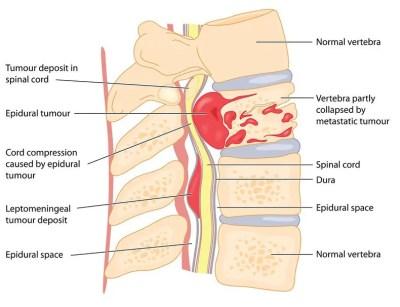 diagrama de tumor espinal | El Paso, TX Quiropráctico